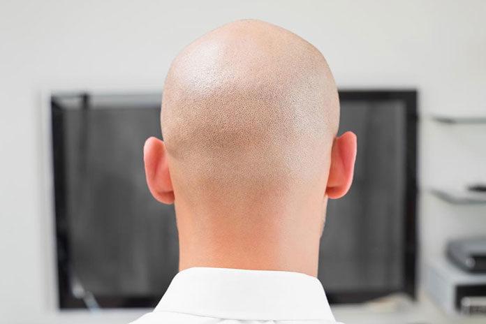 Co zrobić możesz dla włosów?