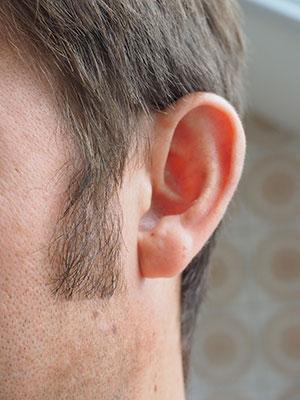 Jak wygląda prawidłowa higiena uszu?