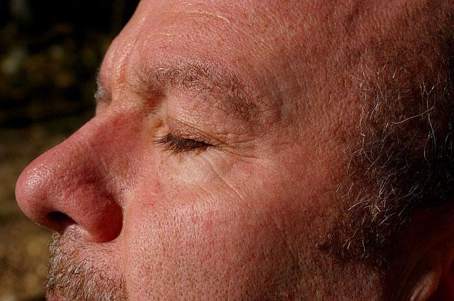 Usuwanie cieni pod oczami - najskuteczniejsze metody
